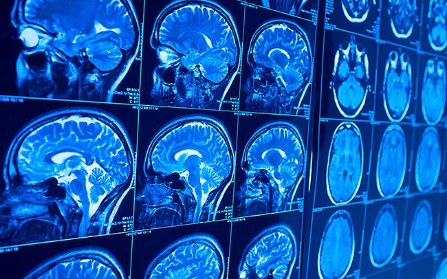 Pot combate antibioticele debutul precoce al demenței?